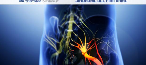 Sindrome del piriforme: cos'è e come si cura
